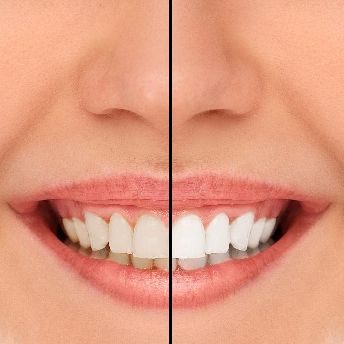 Teeth Whitening | Avondale Dental Centre