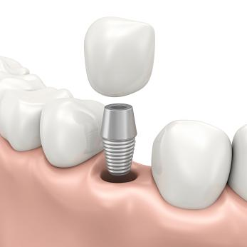 dental implant diagram | Auckland dentist