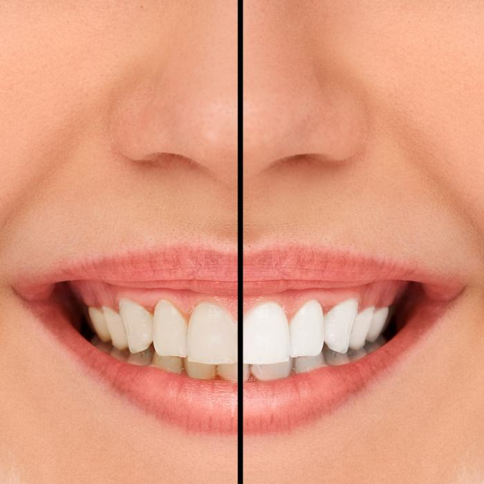 Teeth Whitening before and after | Avondale, Auckland