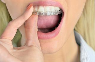 Orthodontics Avondale   Avondale Dental Centre