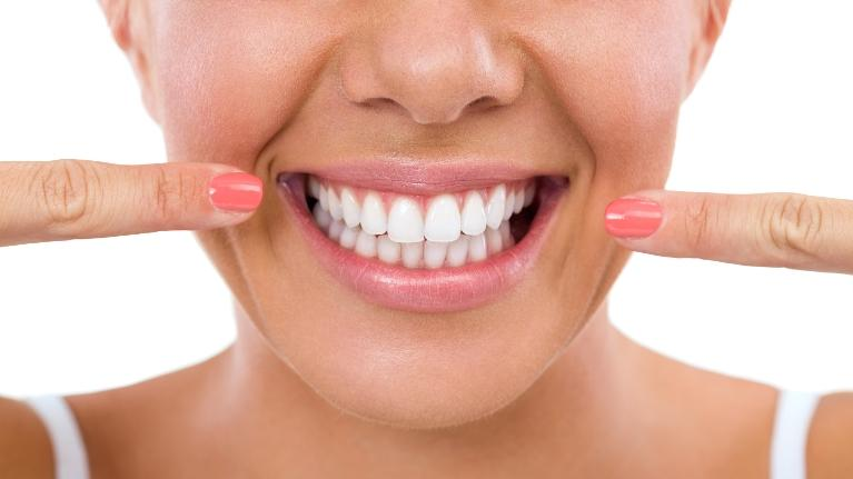 woman with a big smile | Cosmetic Dentist in New Lynn