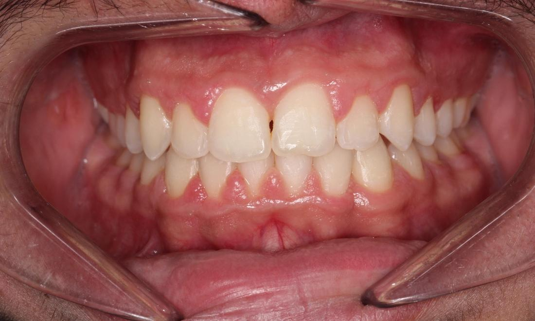 Orthodontics After Photo Auckland