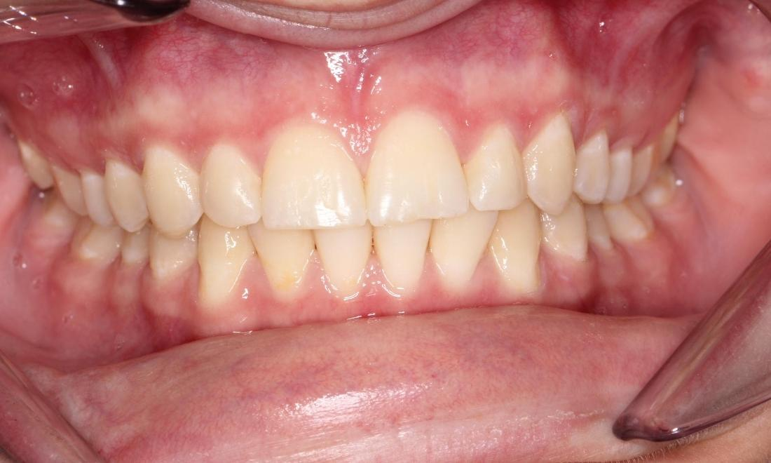 Patient after orthodontics in Avondale