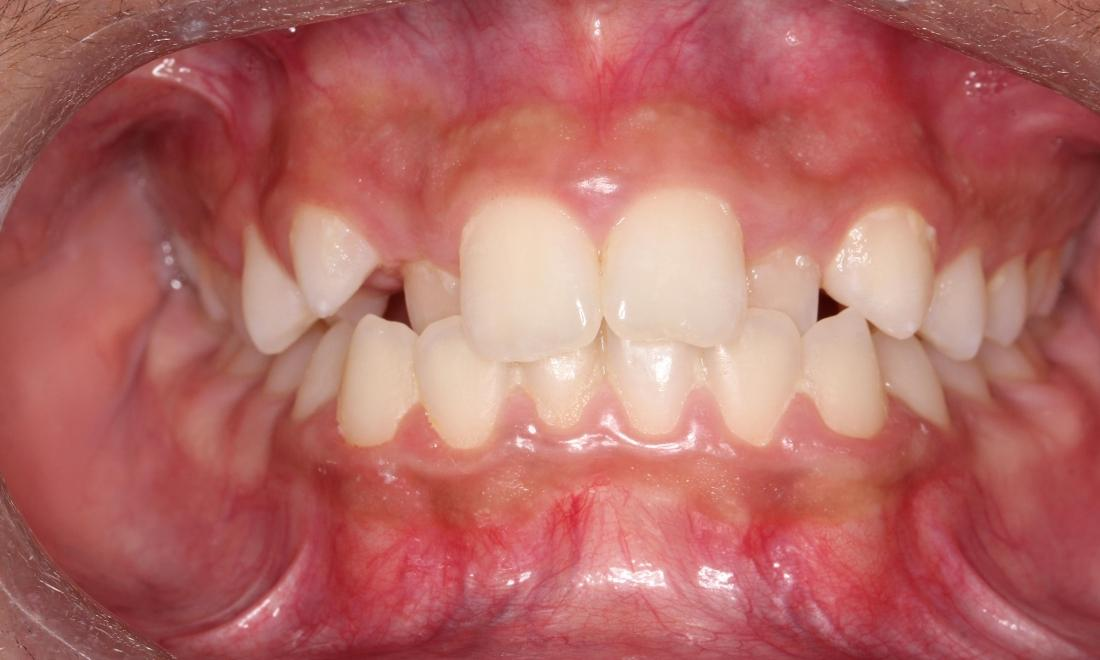 Orthodontics Before Photo Avondale Auckland