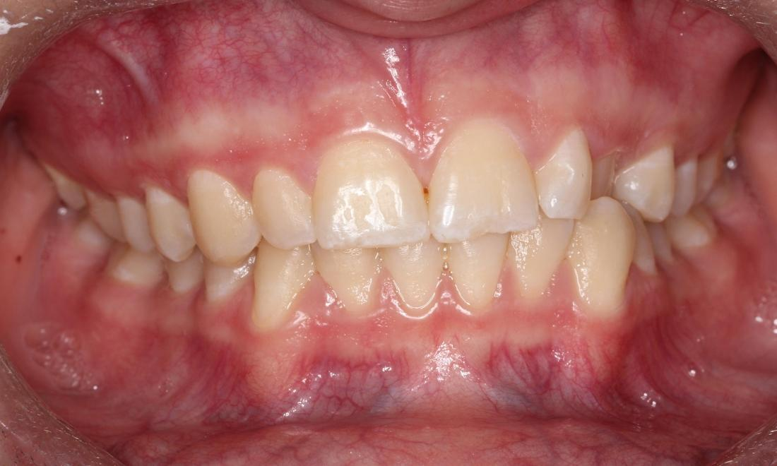 Patient Before Orthodontics in Avondale